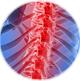 Лечение спины,остеохондроза иглоукалыванием