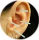Иглотерапия. Противопоказания и показания к лечению.