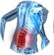 Способы борьбы с остеохондрозом